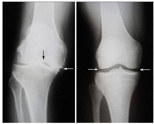 Tratez o articulație a genunchiului